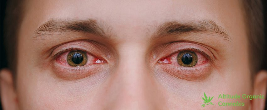 What Causes Bloodshot Eyes